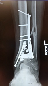 This is my leg 2 months post surgery. The fibula was not repaired but it healed well anyway.
