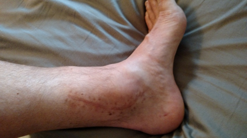 inside of left ankle, suture-line 5.5 months post pilon fracture surgery