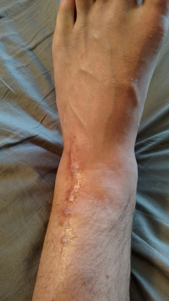 front of ankle, suture-line 5.5 months post pilon fracture surgery